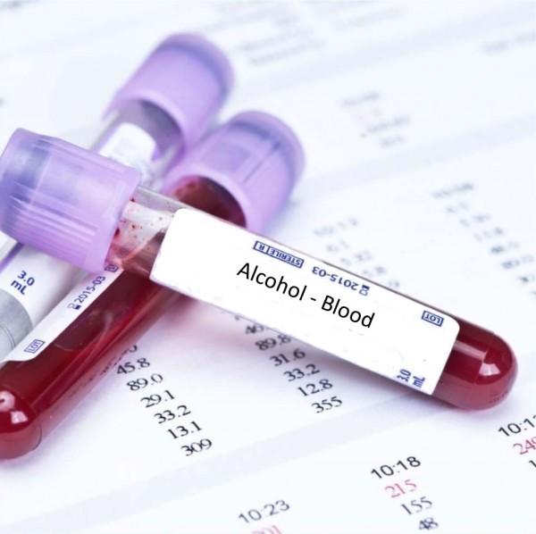 آزمایش خون برای تشخیص الکل