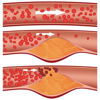 گرفتگی عروق قلب، آنژین یا درد قفسه سینه