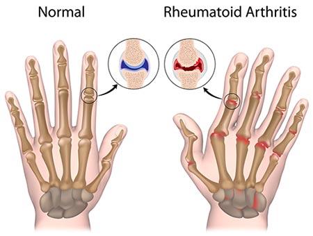 بیماری خود ایمنی آرتریت روماتوئید چیست؟