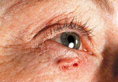 سرطان پوست کارسینوم بازال