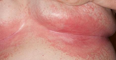 بیماری اینترتریگو Intertrigo