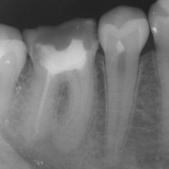 عکس رادیولوژی دندان برای تشخیص آبسه