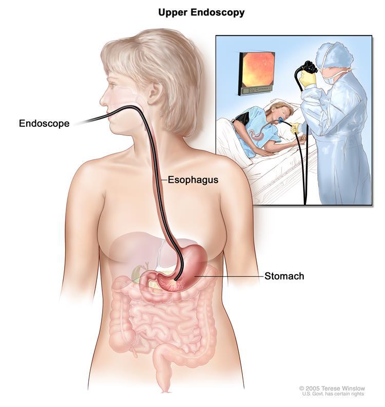 آندوسکوپی برای سرطان معده