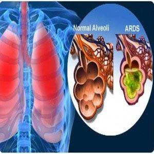 سندرم حاد تنفسی ARDS