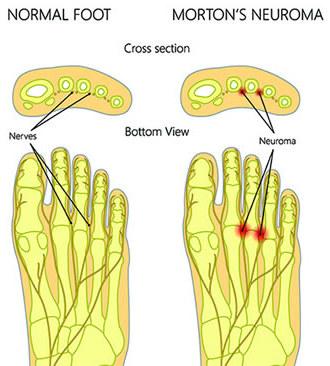 تورم عصب مورتون Morton's neuroma