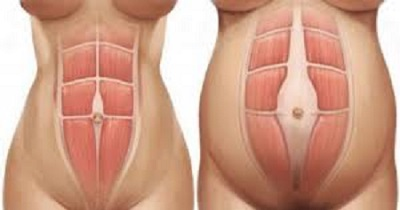 جدا شدن عضلات شکمی در بارداری