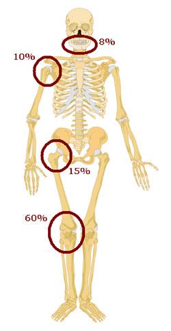 سرطان استخوان استئوسارکوم