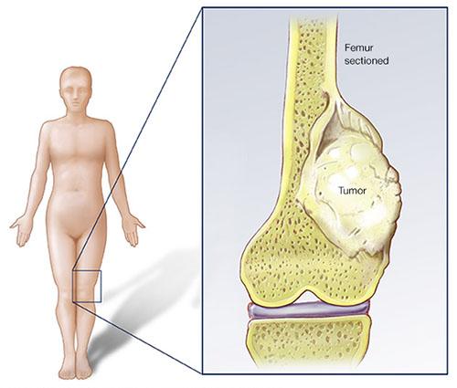 سرطان استئوسارکوم
