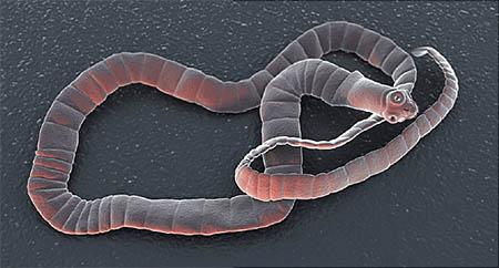 کرم نواری (tapeworm) در بدن انسان