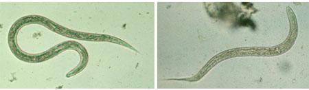 کرمهای قلاب دار (Hookworm)