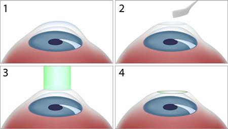 جراحی چشم به روش PRK