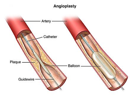 آنژیوپلاستی برای درمان آنژین یا درد قفسه سینه