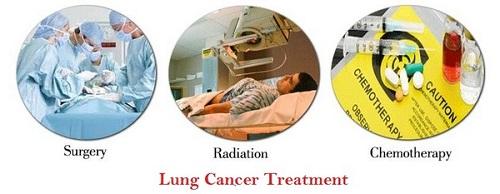 شیمی درمانی، پرتو درمانی، رادیولوژی