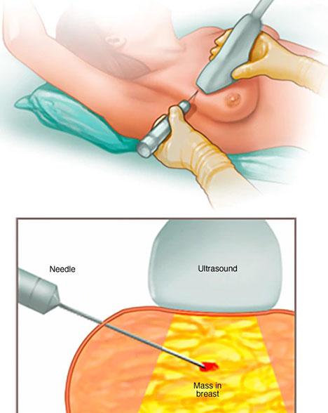 نمونهبرداری یا بیوپسی سرطان پستان یا سینه
