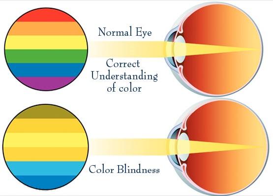 ساختار چشم و کور رنگی