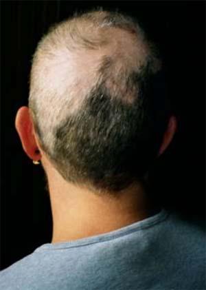 اختلال کندن مو