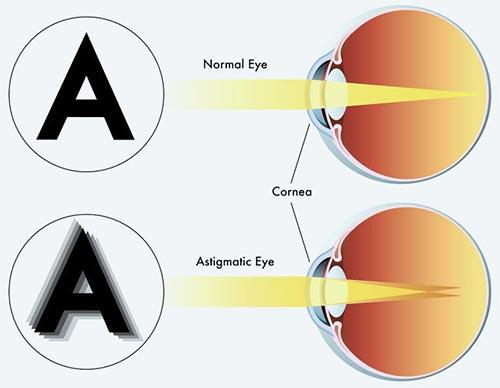 تنبلی چشم