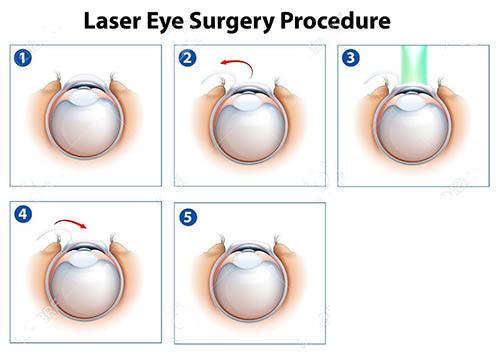 جراحی چشم