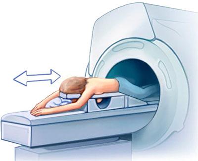 تصویربرداری رزونانس مغناطیسی از پستان (MRI)