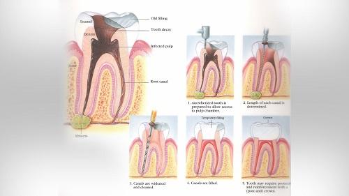 درمان پزشکی آبسه دندان