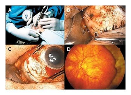 روشهای درمان جدا شدگی شبکیه چشم