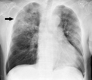پنومونی، عفونت ریه یا ذات الریه