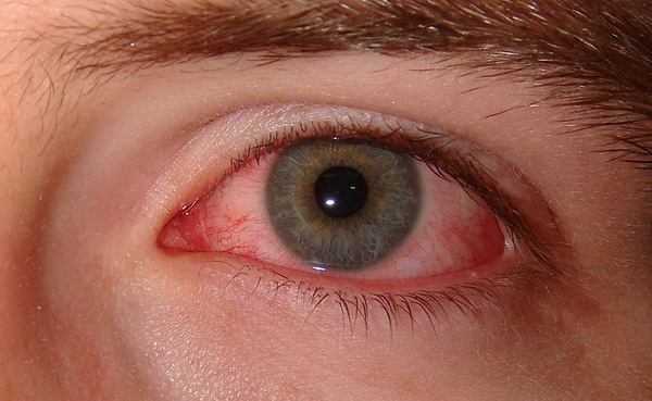 علائم خشکی چشم