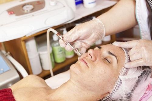 درمان آکنه توسط میکرودرم ابریژن microdermabrasion