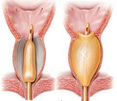 مانومتری برای تشخیص یبوست