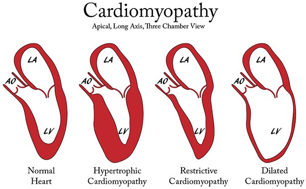 انواع کاردیومیوپاتی
