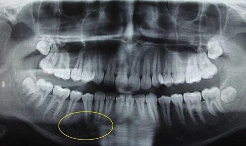 کیستهای تروماتیک استخوان
