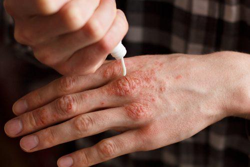 راههای درمانی اگزمای پوستی در زمستان