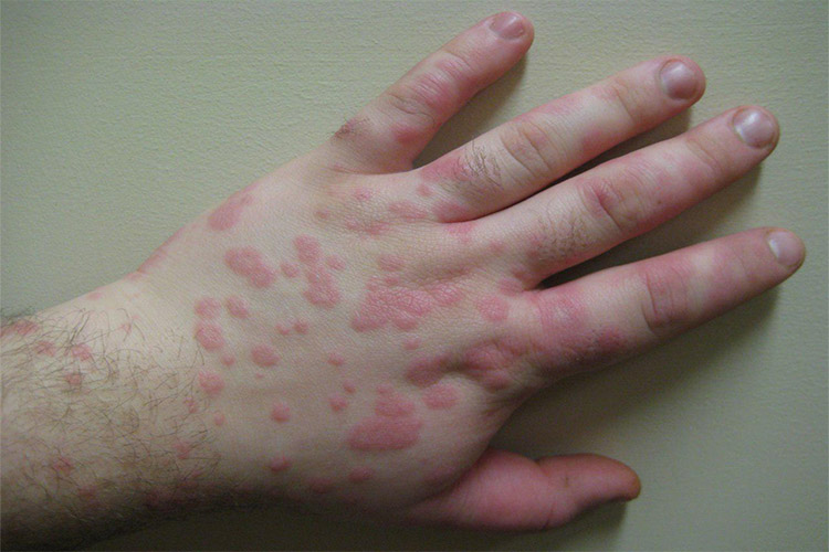 What is multiform skin erythema?