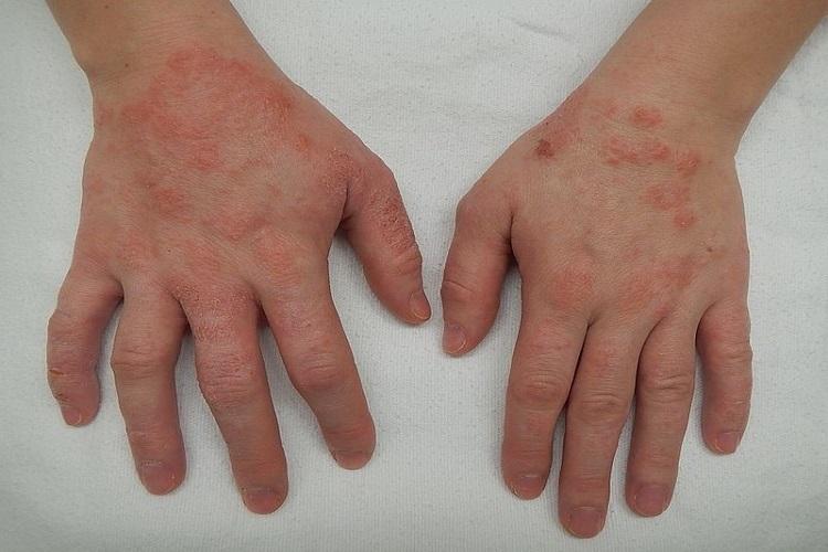 آشنایی با بیماری پوستی التهاب اگزما و انواع آن