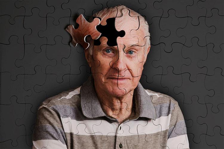 روشهای خانگی برای جلوگیری و درمان آلزایمر
