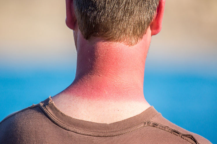 Sunburn and ways to deal with it