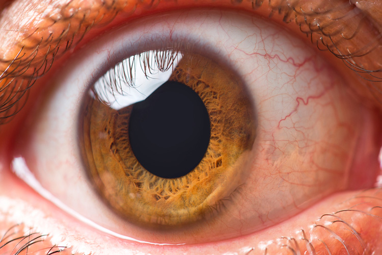 Causes, symptoms and treatment of flutter or floating objects in the eye