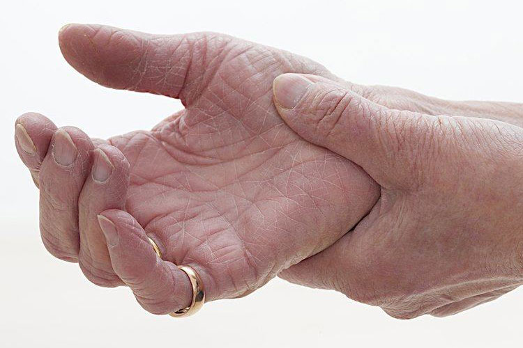 What is rheumatoid arthritis or joint rheumatoid arthritis and how does it cause anemia?