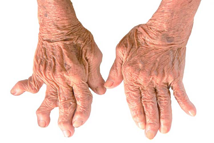 Get familiar with the symptoms, causes, and ways of treating rheumatoid arthritis