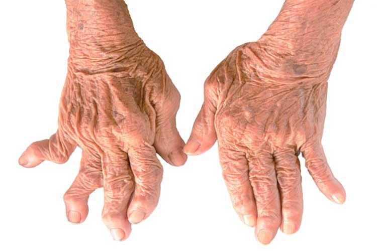 آشنایی با بیماری رماتیسم مفصلی یا آرتریت روماتوئید