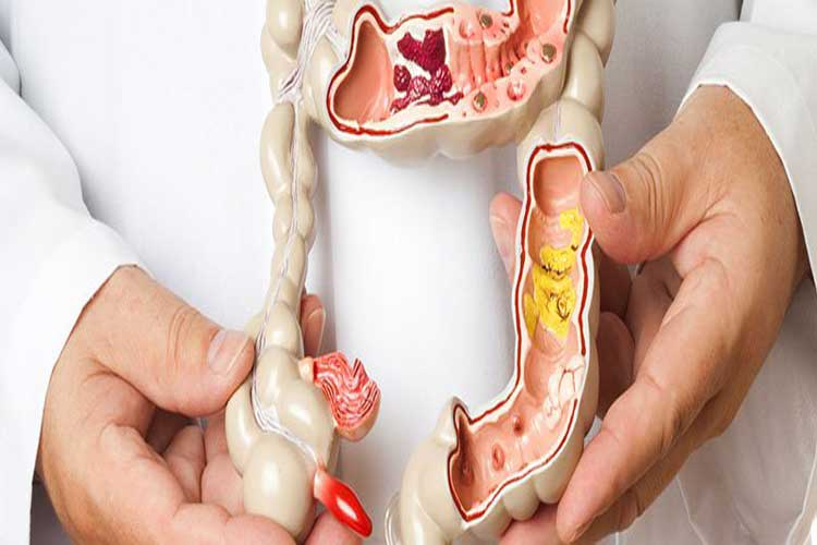 Familiar With Colitis Intestines Signs, Types, Causes and Treatments