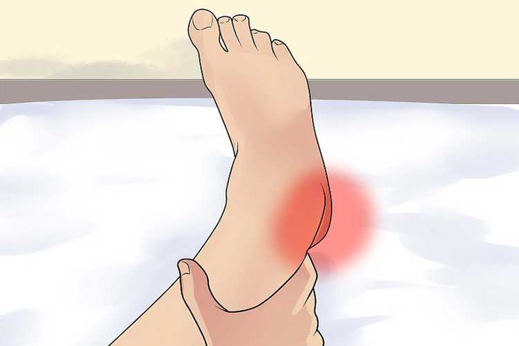 What is the heel and how is he treated?