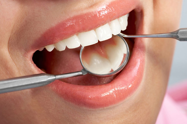 Key and important ways to keep your mouth and gums healthy