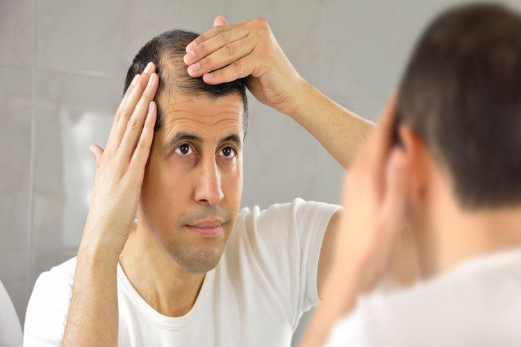 ریزش مو و  معضلات آن، به همراه راهکارهایی جامع برای درمان