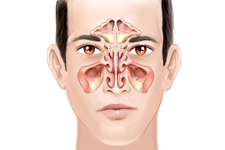 درمانهای خانگی و معجزهآسای سینوزیت و عفونتهای تنفسی