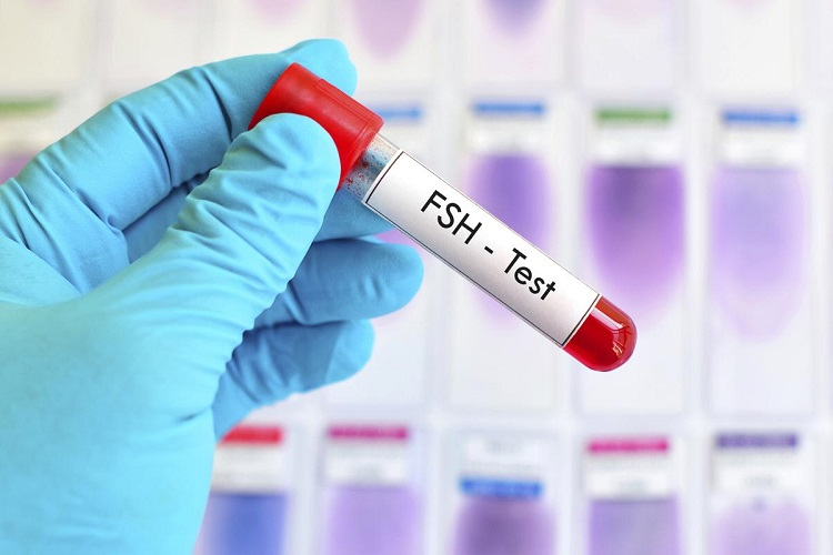 آزمایش FSH یا آزمایش هورمون تحریک کننده فولیکولی چیست؟