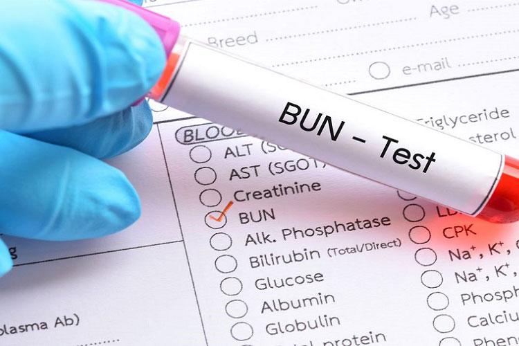 هر آنچه که باید در مورد آزمایش BUN بدانید.