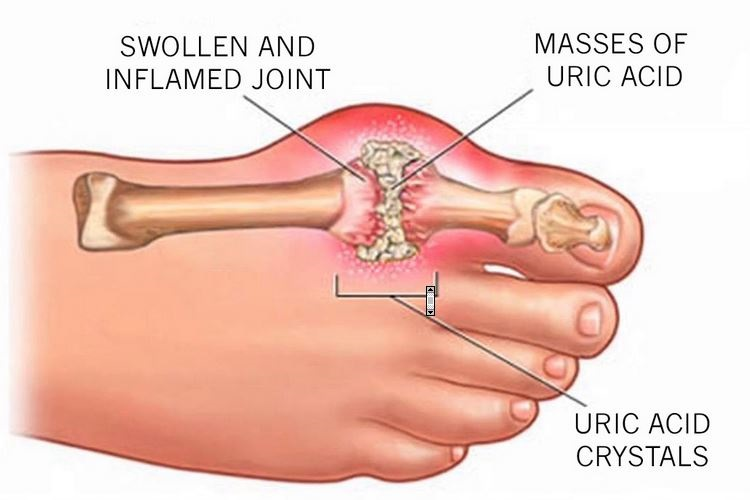 Everything you need to know about gout disease