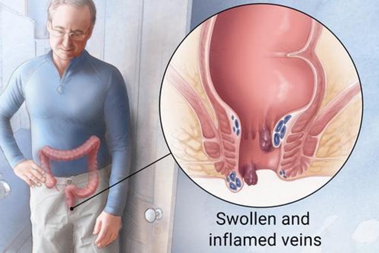 What is hemorrhoids? What are the symptoms and how does it improve?