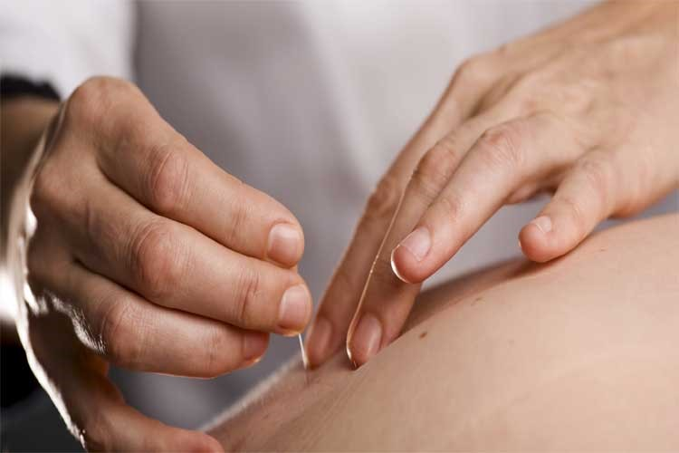 What is acupuncture and which diseases apply to cure?